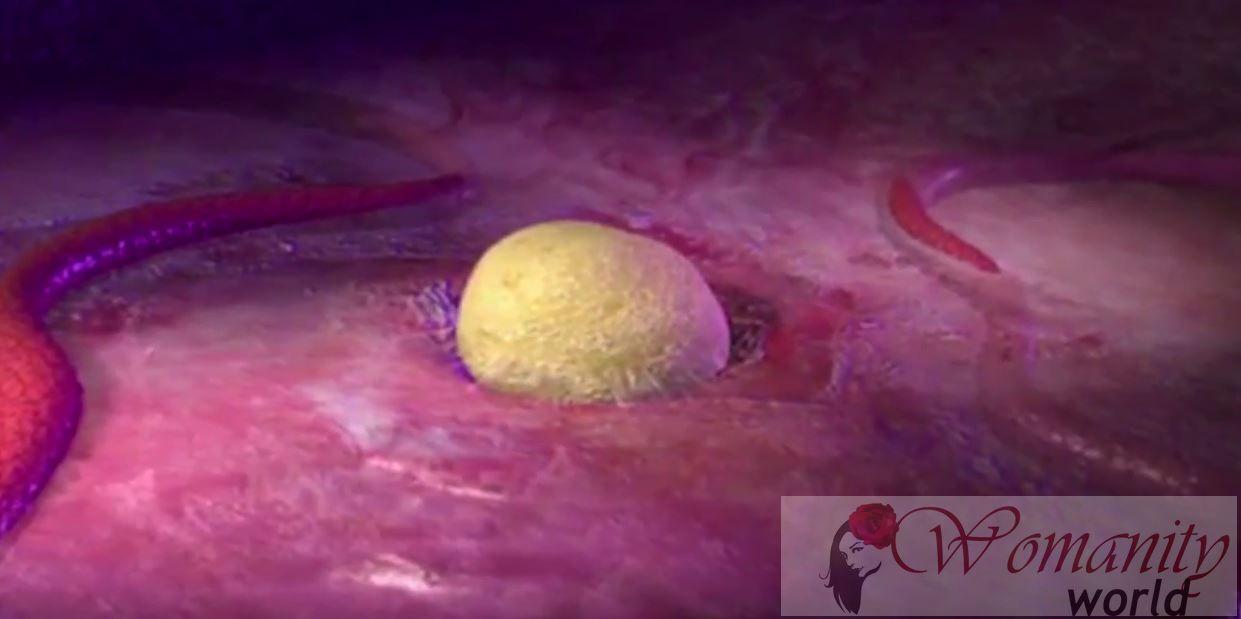 cyster på eggstokkene smerter kvinnelige